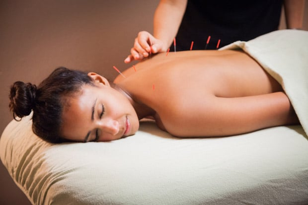 Acupuncturist (Local Experts Answer Your Questions)